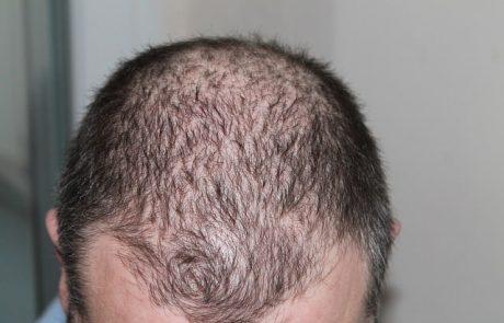 השתלת שיער בטורקיה