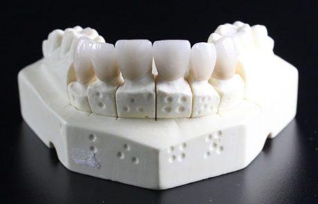 השתלת שיניים בטורקיה – לא צריך לחשוש