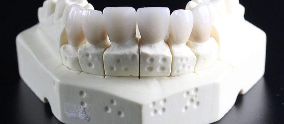 השתלת שיניים בטורקיה